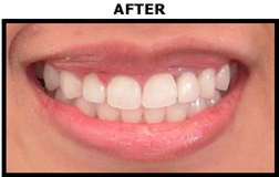 Dental Implant After - Oral Surgery