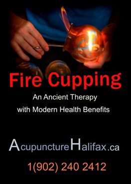 Chinese fire cupping, an ancient therapy with modern health benefits