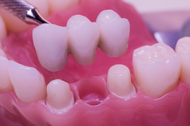 Permanent Dental Bridge