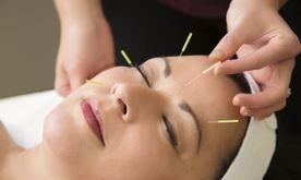 Home Service Acupuncture Metro Manila