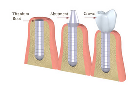 Dental Implant Diagram - Oral Surgery