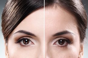 Rejuvenece tu piel desde la primera sesión.
