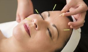Facial Rejuvenation Cosmetic Acupuncture by Janne Irlandes