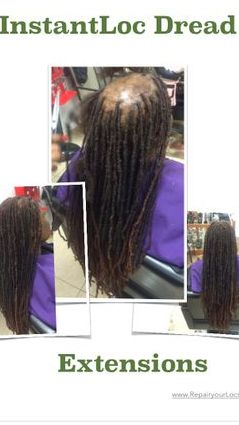 Braids by Bee makes custom hair units with dreadlocks to cover bald areas.