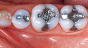 Dental Amalgam Filling