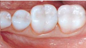 White Tooth Coloured Filling