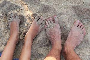 Dina fötter återspeglar din hälsa