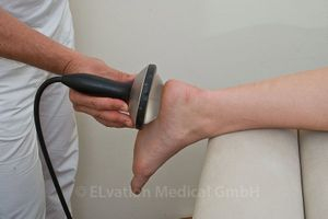Plantar Fasciitis Treatment using Piezowave
