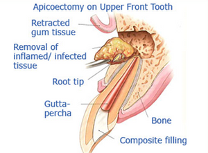 Apicoectomy - Oral Surgery