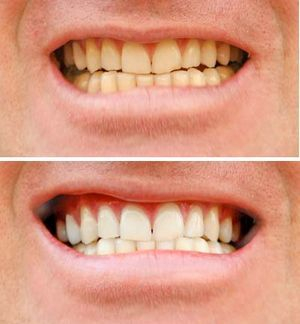 Profesional tooth whitening