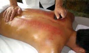 Body Gua Sha Massage Therapist in Manila  | JMI Therapeutic Wellness Services