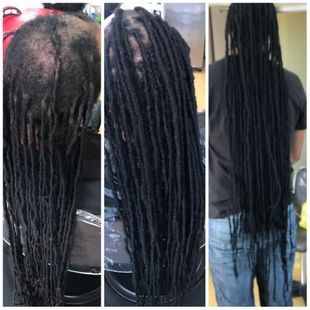 Repair client had a bald spot and long natural dreadlocks performed a Hair transformation / hair transplant for client relocating his dreadlocks to top area where bald spots needed coverage