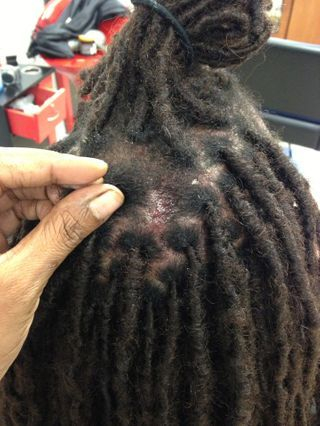 InstantLocs done on very short hair, customer came back to add in a few that fell out, as you can see he has a scalp issue that causes itching which may have cause dreadlock to fall out.  Client started on short hair so this is to be expected.
