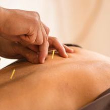 Back Shu Acupuncture by Janne Irlandes What is Acupuncture?