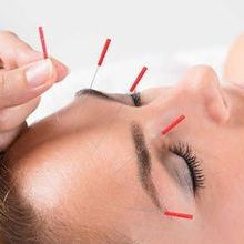 Acupuncture for INsomnia by Janne Irlandes