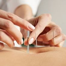 Acupuncture for Weight Loss by Janne Irlandes