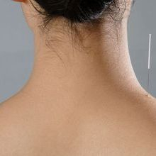 Neck Acupuncture by Janne Irlandes