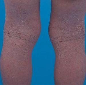 eczema asthma allergy belly ache rash hives wheals weals wheels