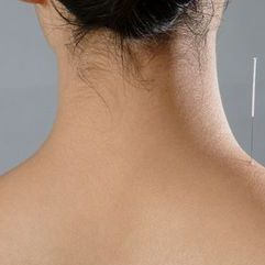 Neck Acupuncture by Janne Irlandes What is Acupuncture?