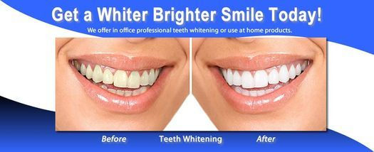 Professional at home whitening Designer White, White GLO
