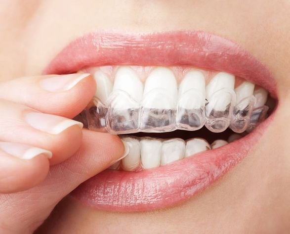 Custom whitening trays allow you to brighten your smile... and keep it that way!