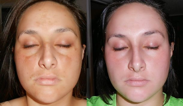 Tri Luma Cream Photo Before &  After