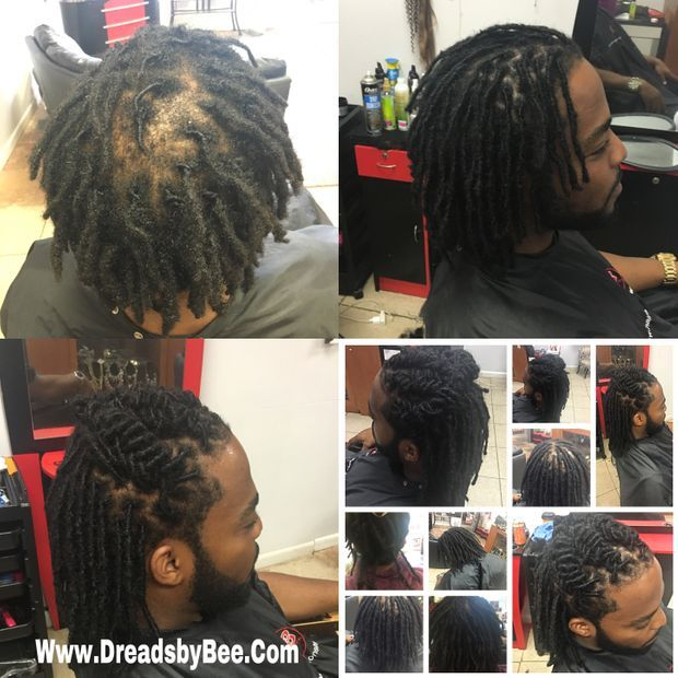 Braids by Bee repairs clients with dreadlocks and receding middle bald spot with coverage of fill in dreadlocks with InstantLoc Dread Extensions