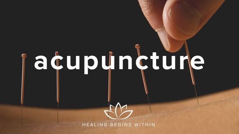 Acupuncture janne irlandes