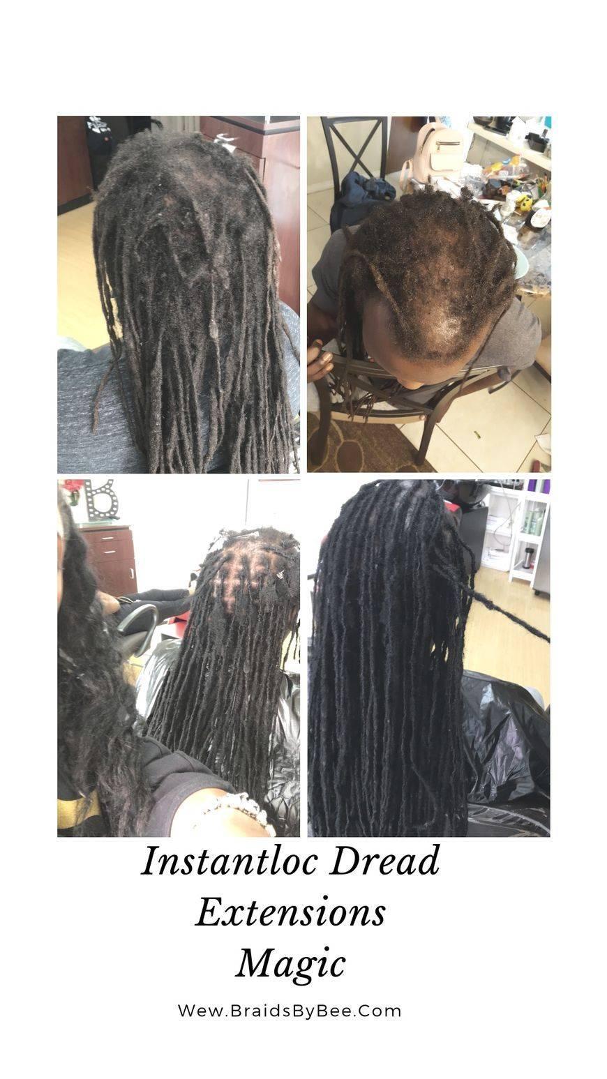 Instantloc Dread Extensions method used to repair his dreadlocks and perform hair transplant