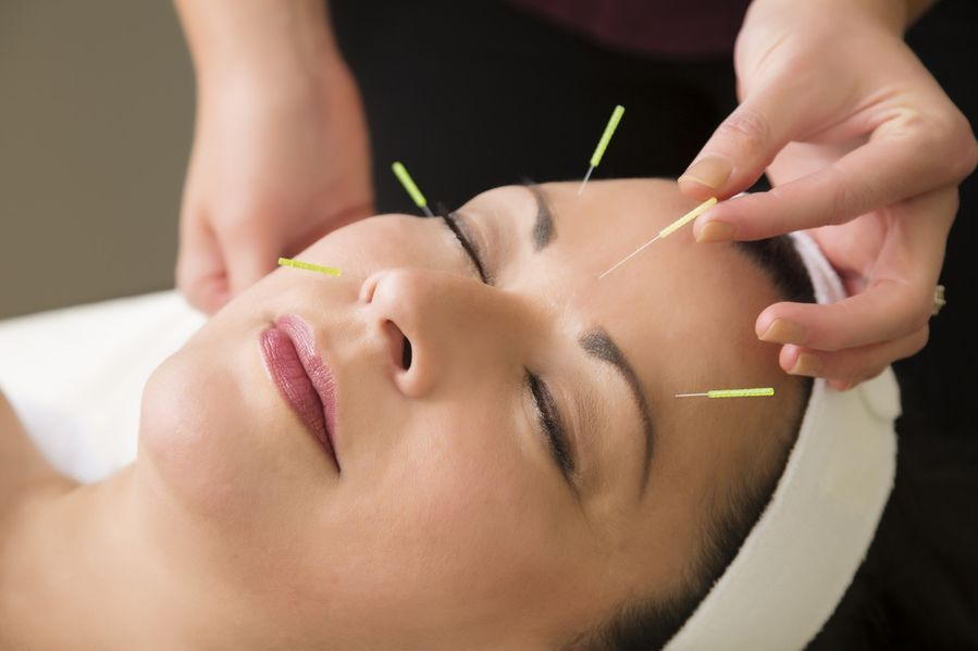 Cosmetic Acupuncture Manila
