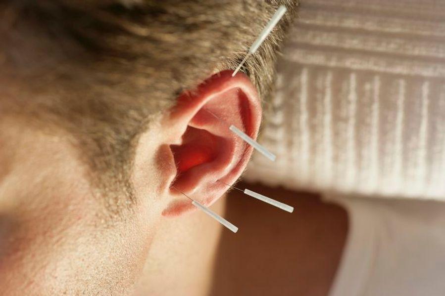 Ear acupuncture  | Acupuncturist in Manila JMI Therapeutic Wellness Services