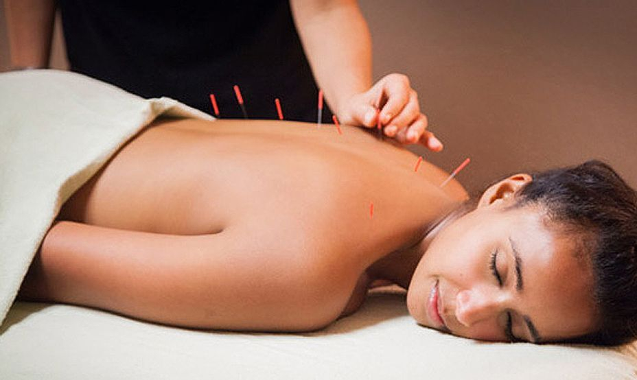 Body Acupuncture Welcome to JMI Therapeutic Wellness Services