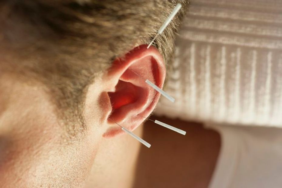 Ear acupuncture  | Acupuncturist in Manila JMI Therapeutic Wellness Services
