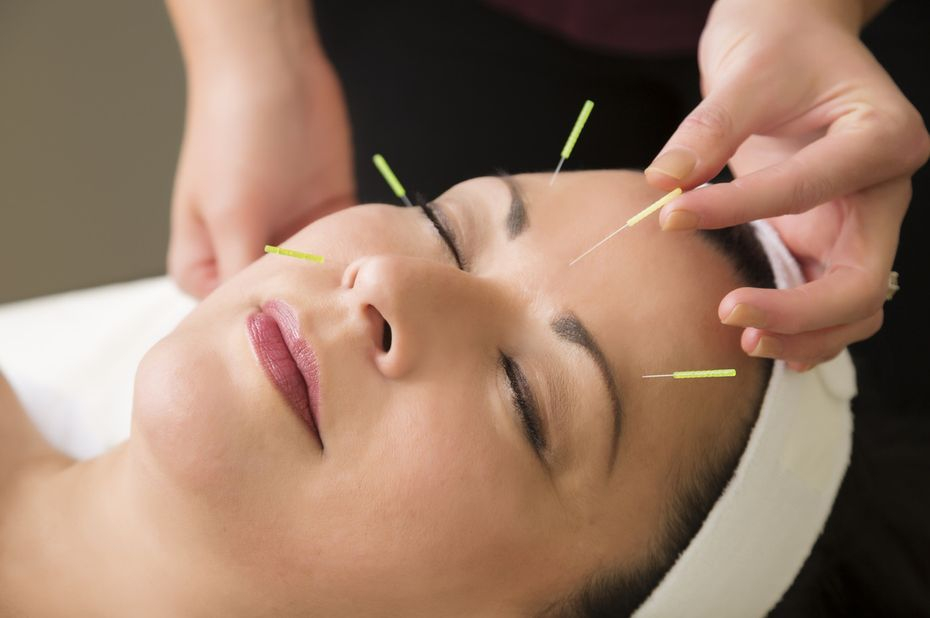Cosmetic acupuncture Welcome to JMI Therapeutic Wellness Services