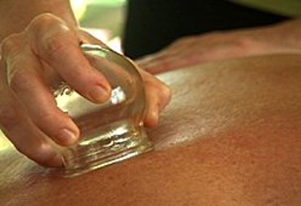 Moving Fire glass cupping JMI Therapeutic Wellness Services | Complementary and Alternative Therapies